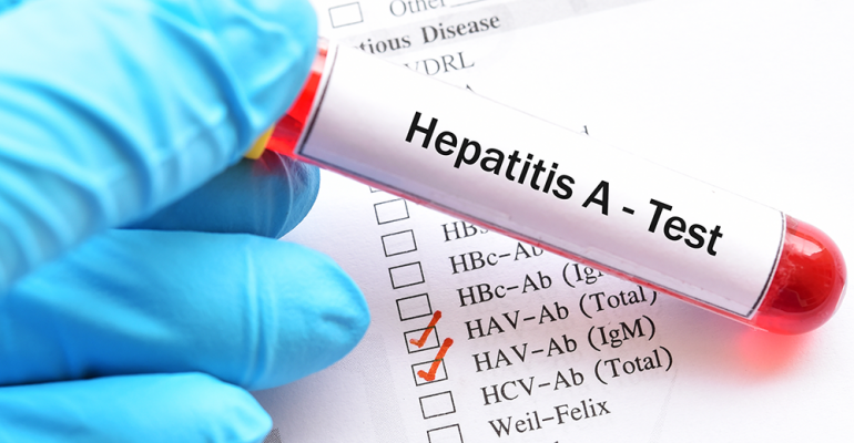hepatitisAtest.png
